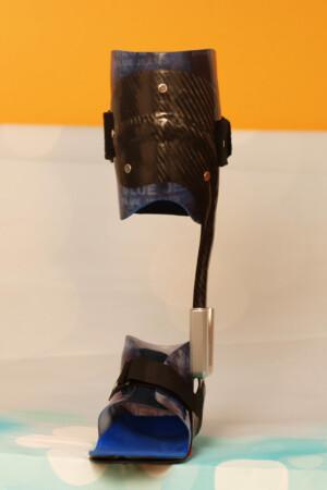 dynamische Fuß Unterschenkel  Orthese aus Carbon Prepreg mit thermoplastischem Innenschaft und Neuro Swing Gelenk, kombinierte Bauweise