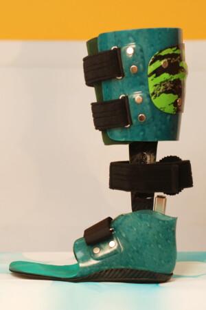 dynamische Fuß Unterschenkel -Carbon Prepreg Orthese mit thermoplastischem Innenschaft und Neuro Swing Gelenk, kombinierte Bauweise