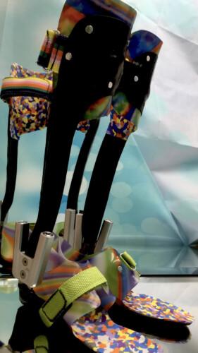 dynamische Fuß Unterschenkel  Orthese, Carbon Prepreg Technik kombiniert mit thermoplastischem Innenschaft und Neuro Swing Gelenk